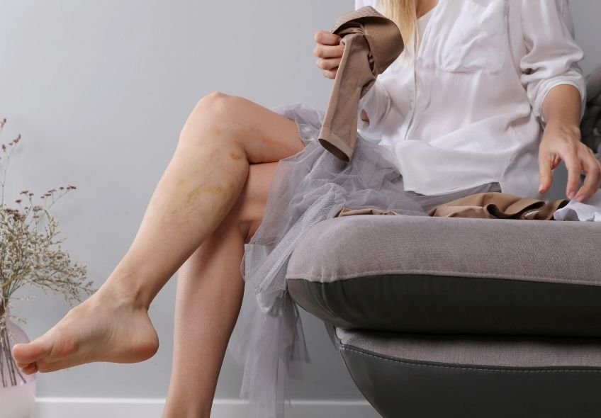 Women's Compression Stockings: All You Should Know