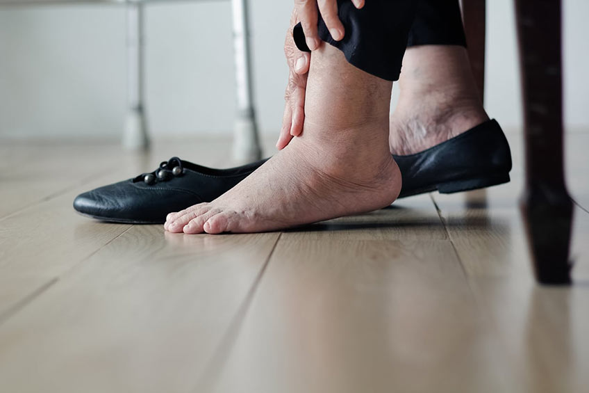 Old woman with leg swelling in her shoes